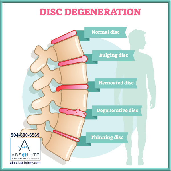 Different Types Disc Injuries